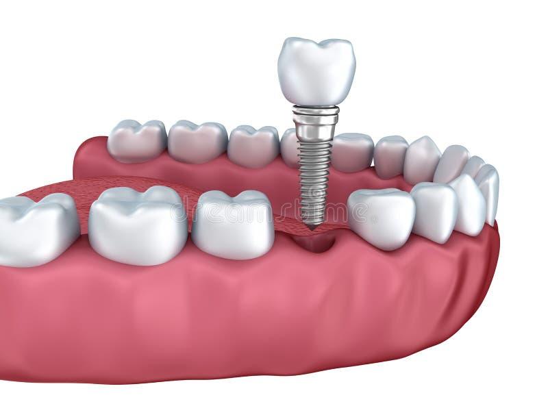 3d lagere tanden en geïsoleerde tandimplant stock illustratie