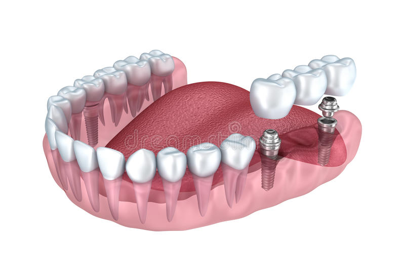 3d lower teeth and dental implant transparent render. Isolated on white stock illustration