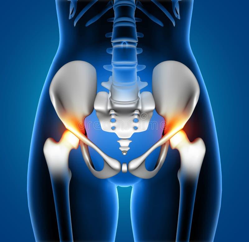 3D medisch wijfje die pijn in heupverbindingen tonen stock illustratie
