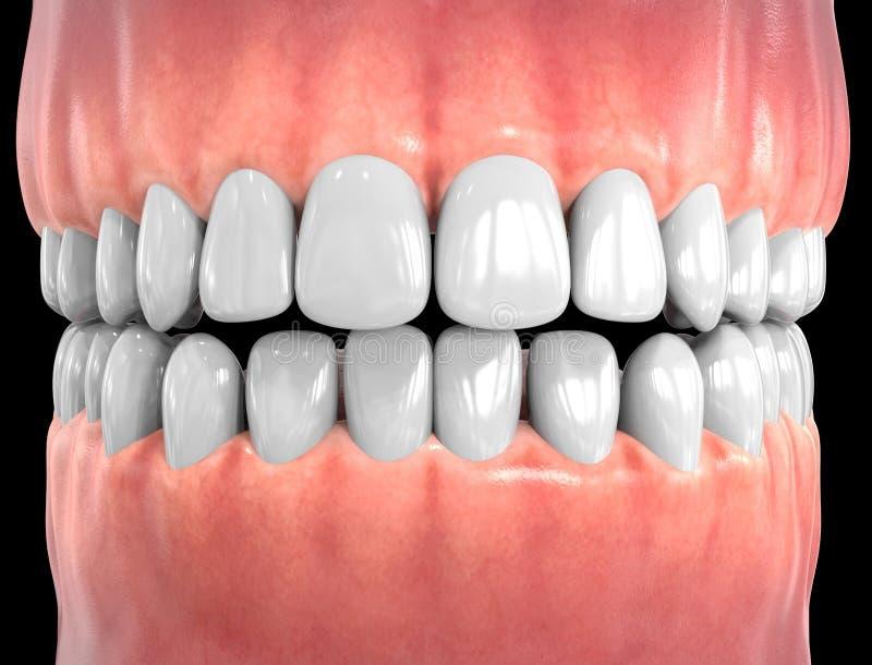 3D Odosobneni zęby royalty ilustracja