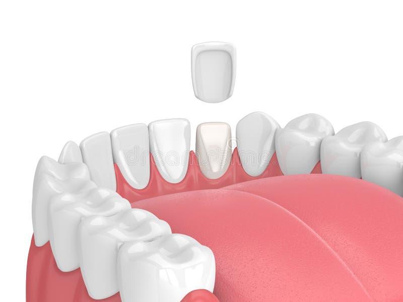 3d odpłacają się zęby z fornirem ilustracji
