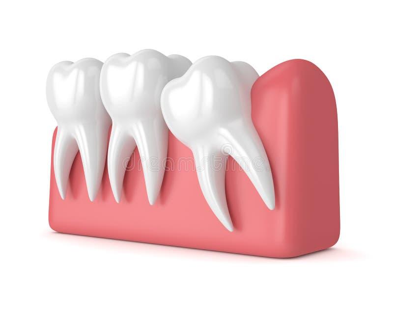3d odpłacają się zęby z mądrości mesial wciśnięciem ilustracja wektor