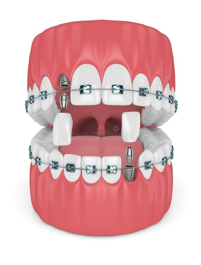 3d odpłacają się zęby z ortodontycznymi brasami i stomatologicznymi wszczepami royalty ilustracja