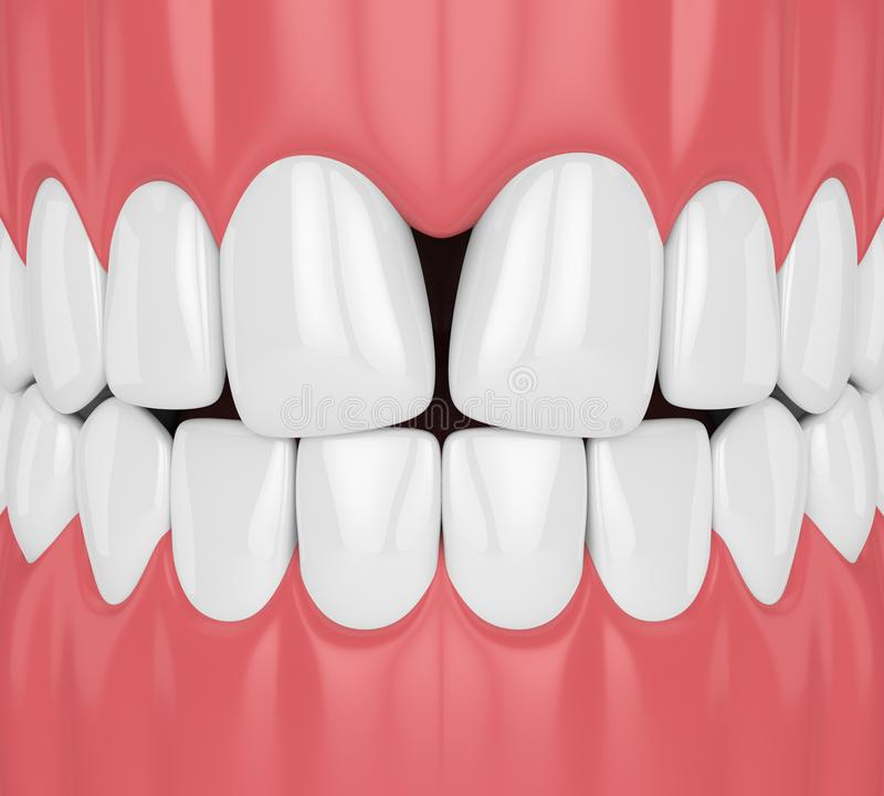 3d odpłacają się zęby z zbieżnym diastema ilustracja wektor