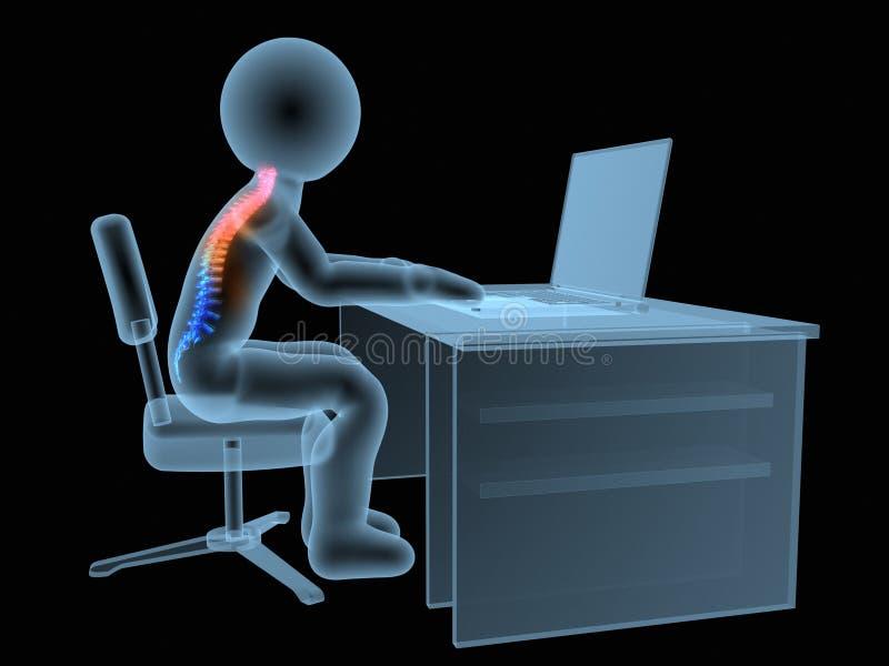3d odpłacająca się medyczna ilustracja - mylna siedząca postura ilustracja wektor
