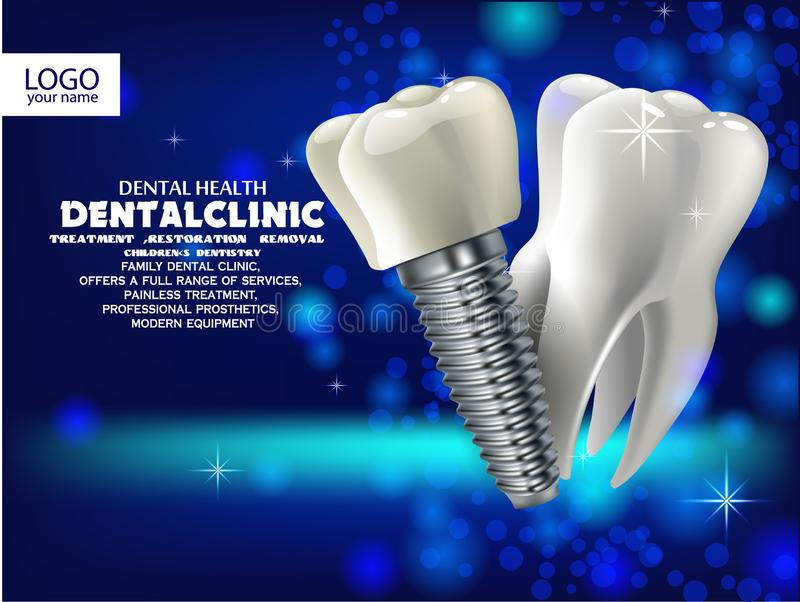 3D prosthesis and healthy tooth realistic stock illustration