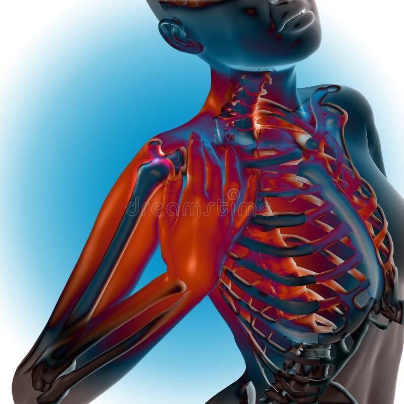 3D rendem de uma figura fêmea com ombro doloroso ilustração do vetor