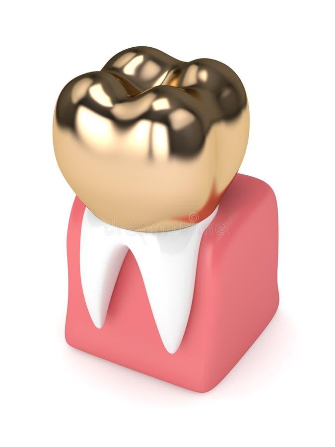 3d rendem do dente com enchimento dourado dental da coroa ilustração royalty free