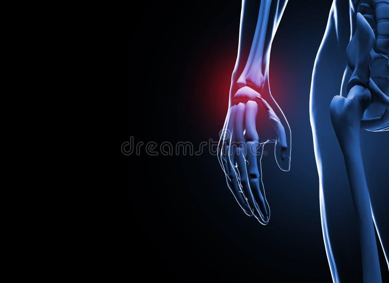 3d rendem a dor humana da mão e do pulso ilustração stock