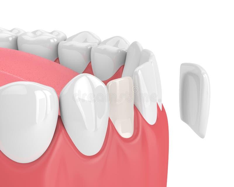 3d rendem dos dentes com folheado ilustração stock