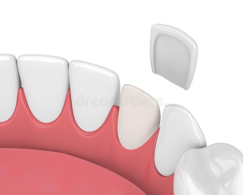 3d rendem dos dentes com folheado ilustração royalty free