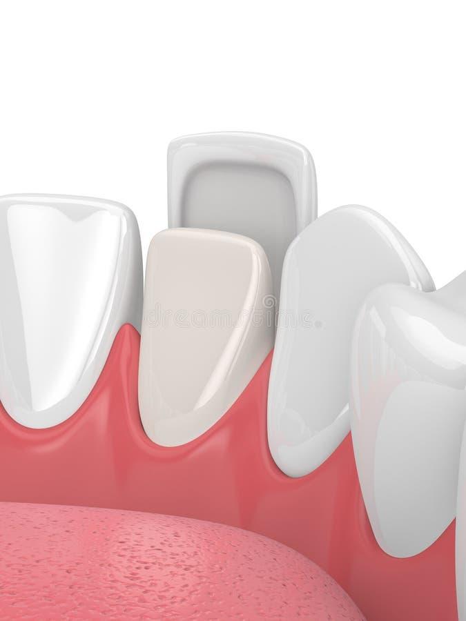 3d rendem dos dentes com folheado ilustração do vetor