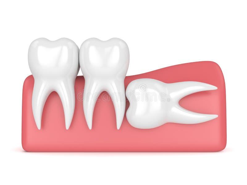3d rendem dos dentes com impacção horizontal da sabedoria ilustração royalty free