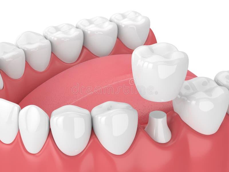 3d rendent de la mâchoire avec des dents et la restauration dentaire de couronne illustration stock