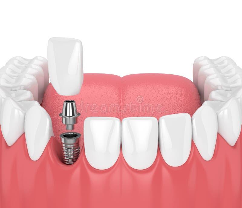 3d rendent de la mâchoire avec les dents et l'implant dentaire d'incisive illustration libre de droits