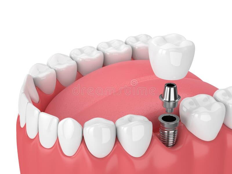 3d rendent de la mâchoire avec les dents et l'implant molaire dentaire illustration libre de droits