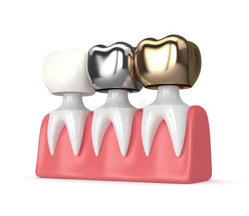 3d rendent des dents avec différents types de couronne dentaire illustration de vecteur