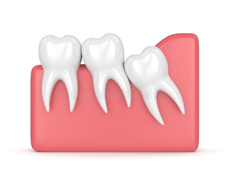3d rendent des dents avec l'encombrement de sagesse illustration libre de droits