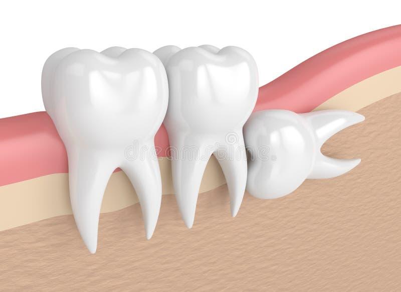 3d rendent des dents avec l'impaction horizontale de sagesse illustration libre de droits