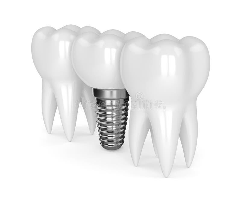 3d rendent des dents avec l'implant dentaire illustration de vecteur