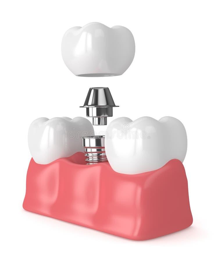 3d rendent des dents avec l'implant dentaire illustration stock