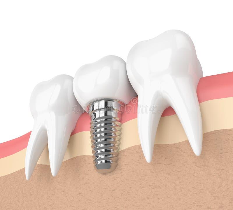 3d rendent des dents avec l'implant dentaire dans les gommes illustration libre de droits