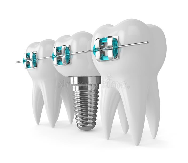 3d rendent des dents avec l'implant et les accolades illustration libre de droits