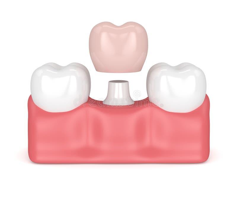 3d rendent des dents avec la restauration dentaire de couronne illustration stock