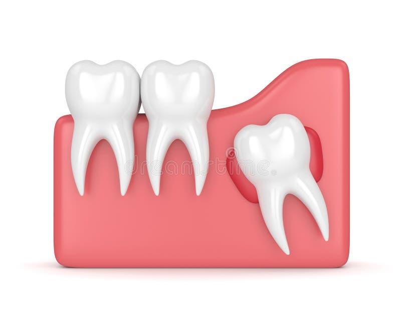3d rendent des dents avec le kyste de sagesse illustration de vecteur