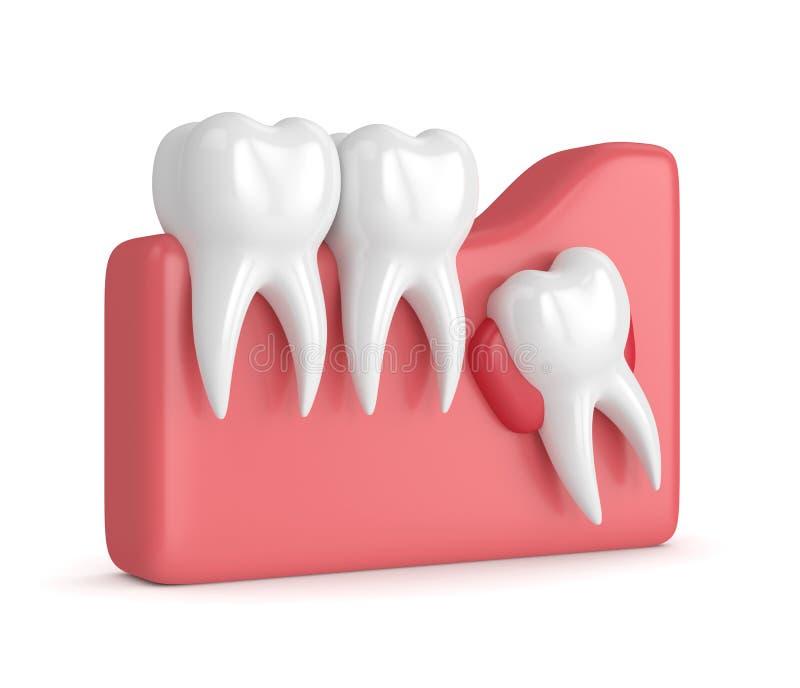 3d rendent des dents avec le kyste de sagesse illustration libre de droits