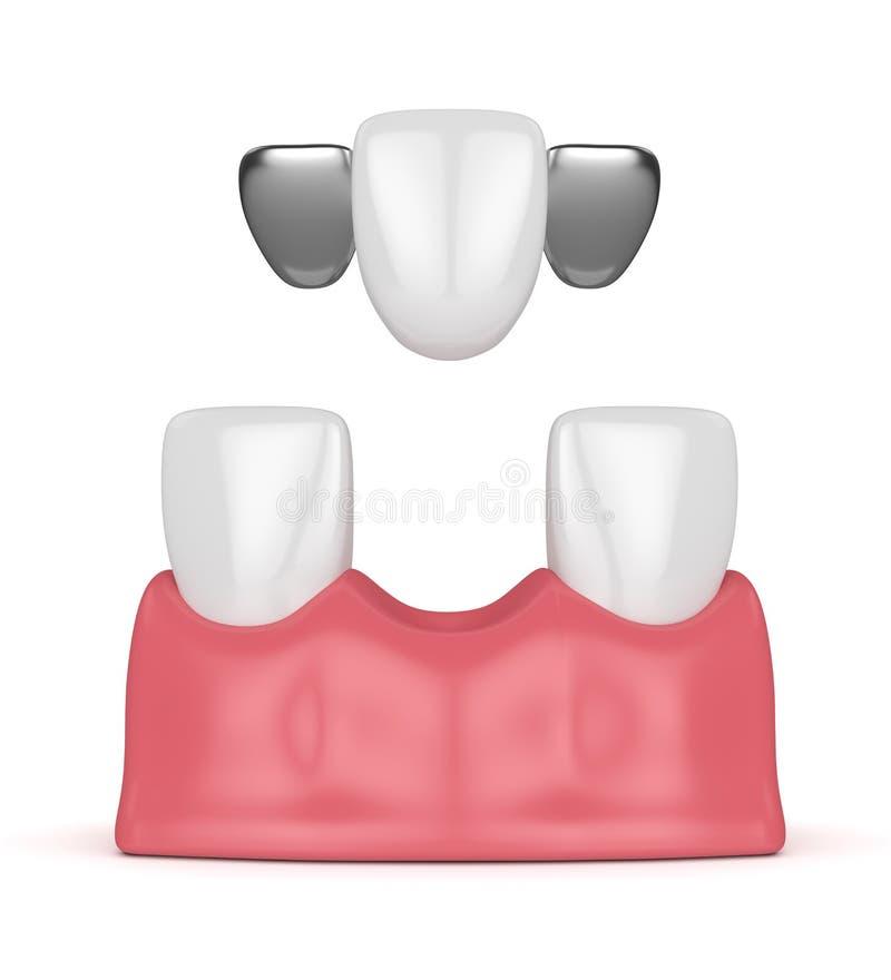 3d rendent des dents avec le pont dentaire du Maryland illustration stock
