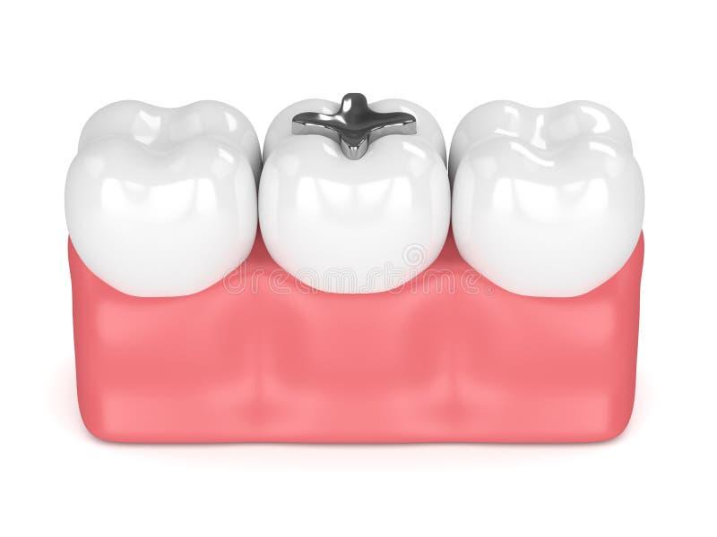 3d rendent des dents avec le remplissage d'amalgame dentaire illustration libre de droits