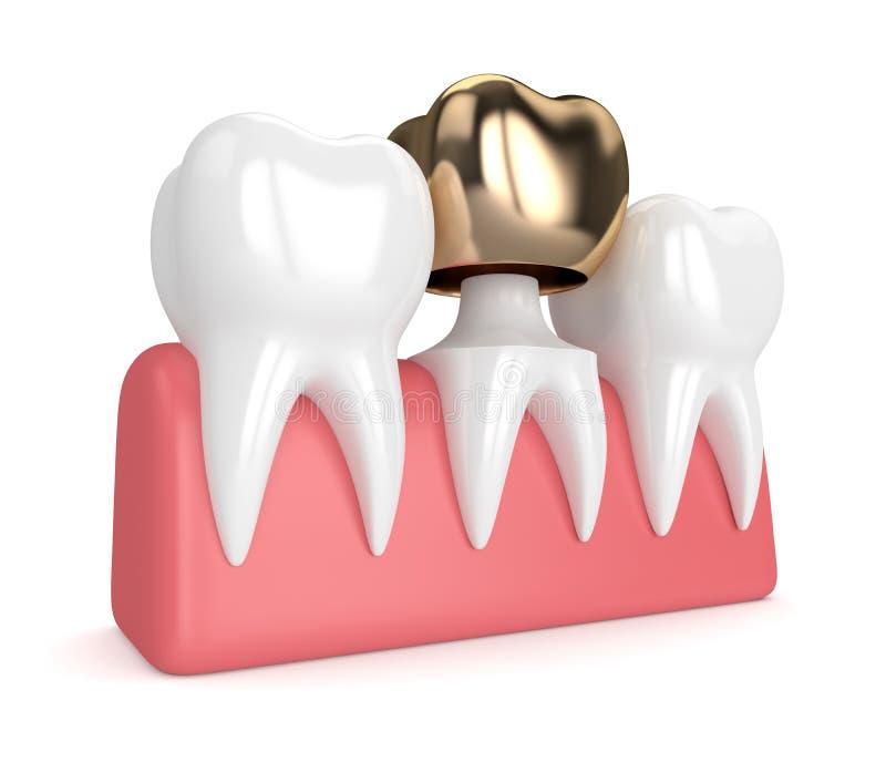 3d rendent des dents avec le remplissage d'or dentaire de couronne illustration libre de droits