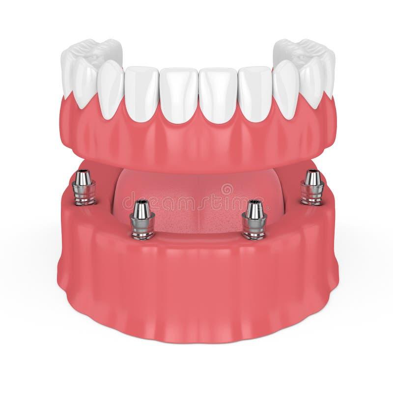 3d rendent du plein dentier démontable d'implant illustration stock