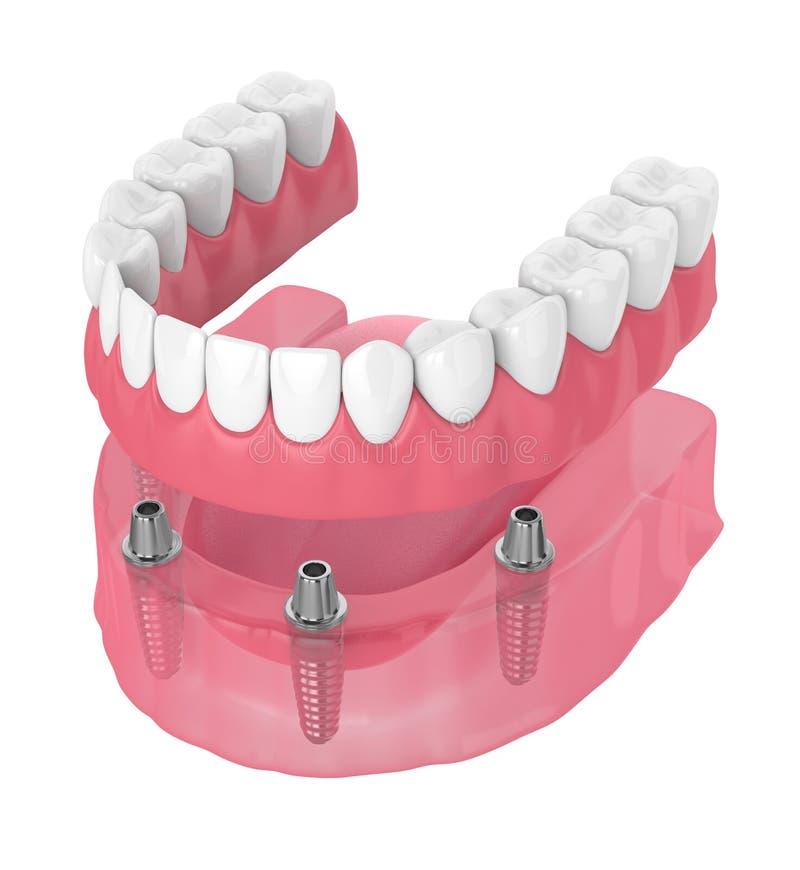 3d rendent du plein dentier d?montable d'implant illustration de vecteur