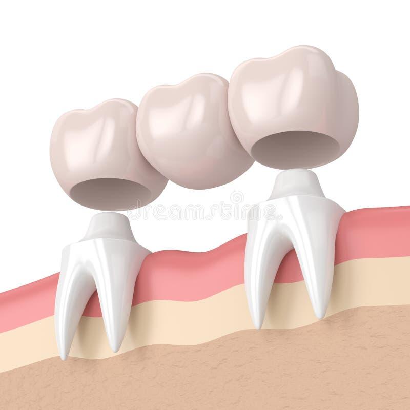 3d rendent du pont dentaire avec les couronnes dentaires illustration libre de droits