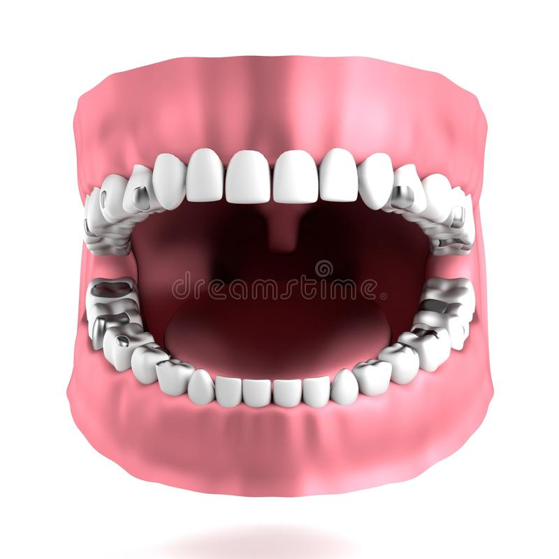 3d Render Of Human Teeth With Fillings Stock Illustration