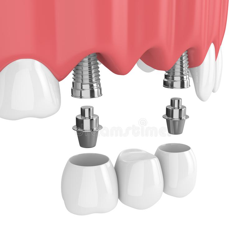 3d Render Of Implants With Dental Bridge In Upper Jaw Stock ...