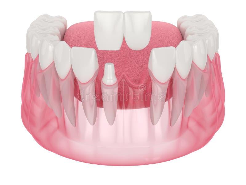 3d render of  jaw with dental cantilever bridge. Over white background vector illustration