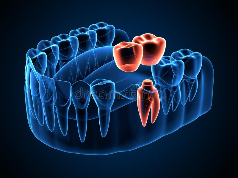 3d render of jaw x-ray with dental cantilever bridge. Different types of dental bridges concept vector illustration