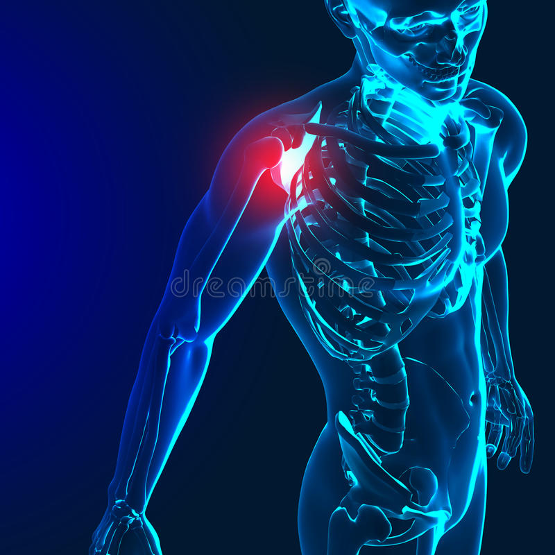 3d render of a medical image with painful shoulder,elbow and spine highlighted stock illustration
