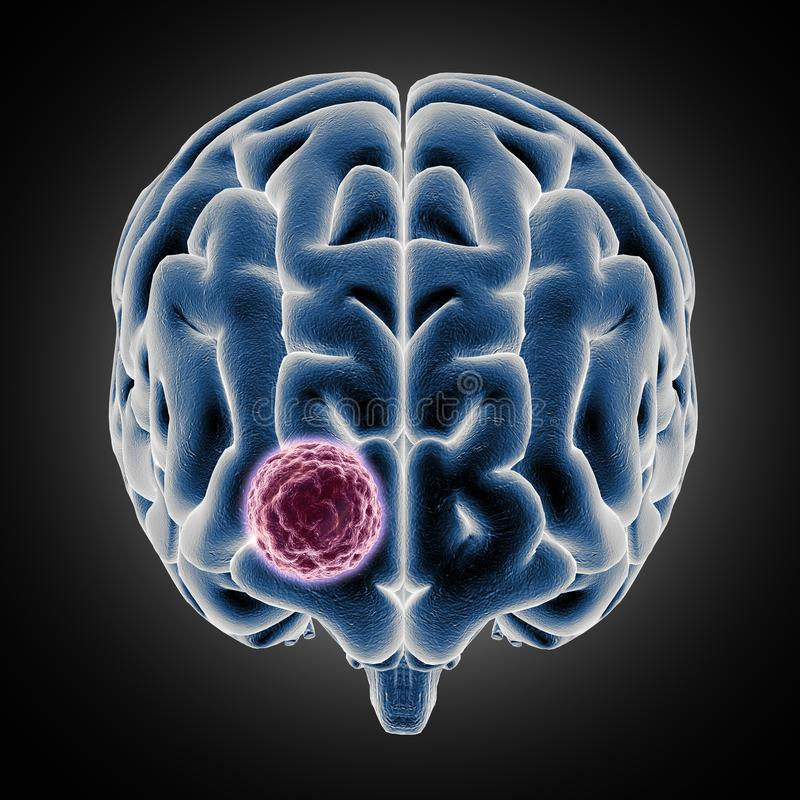 3D medical image showing brain with tumor growing royalty free illustration