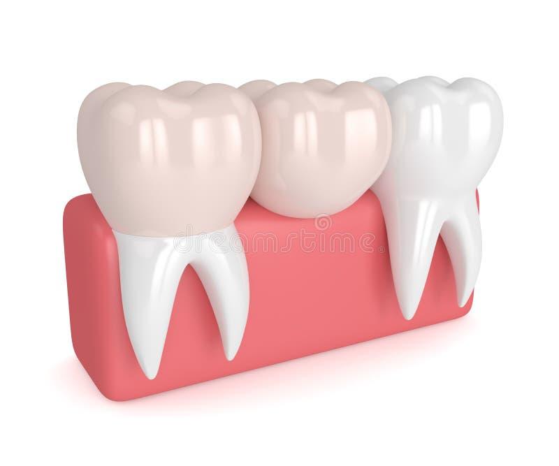 cantilever bridge dental