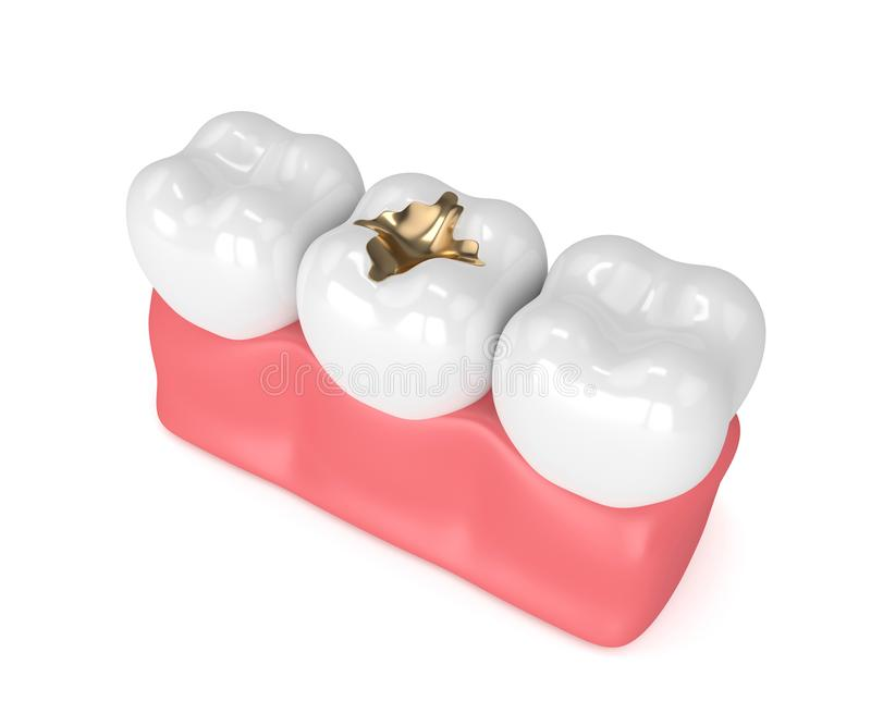 3d Render Of Teeth With Dental Gold Filling Stock Illustration ...