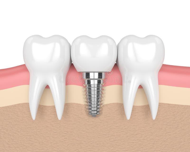 3d render of teeth with dental implant in gums vector illustration