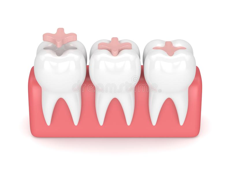 3d render of teeth with dental inlay filling. In gums over white background royalty free illustration