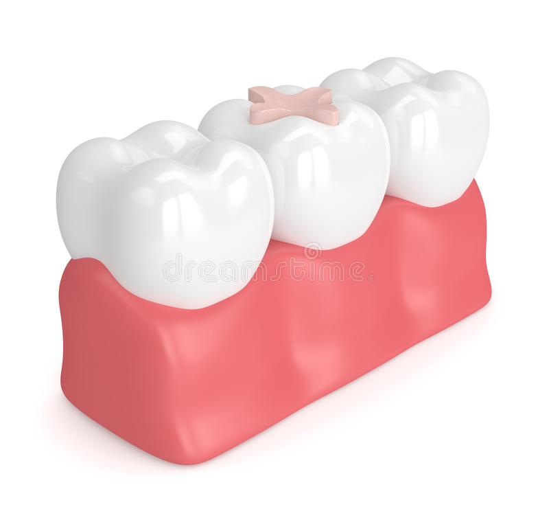 3d Render Of Teeth With Dental Inlay Filling Stock Illustration ...