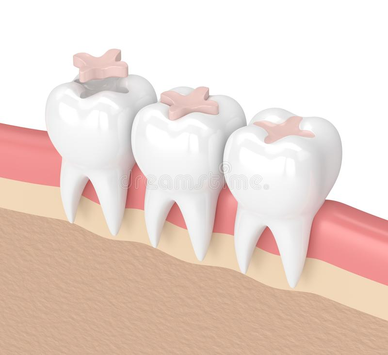 3d render of teeth with dental inlay filling. In gums vector illustration