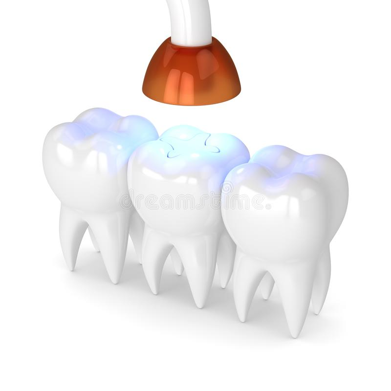 3d render of teeth with dental polymerization lamp and light cured inlay. Filling over white background vector illustration