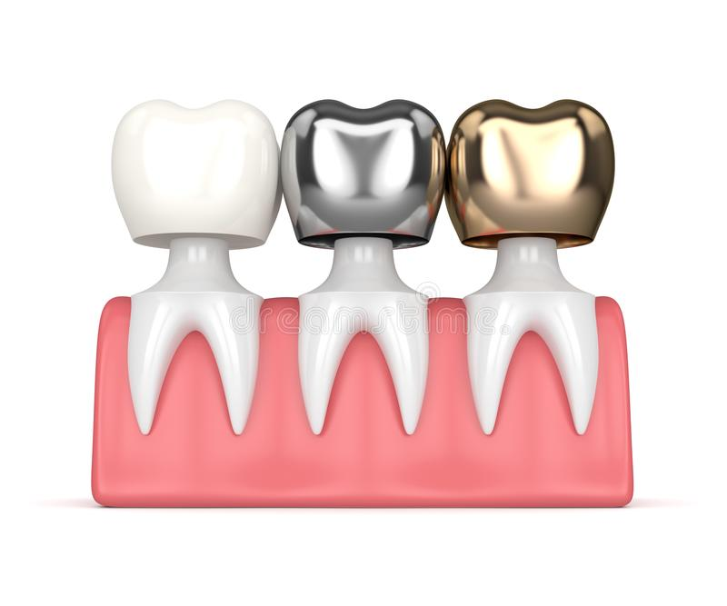 3d Render Of Teeth With Different Types Of Dental Crown Stock ...